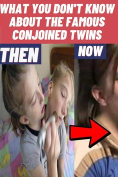 #About #Famous #Conjoined #Twins Funny Vidos, Funny Laugh, Funny Jokes, Stress Funny, Modern Entertainment Center, Girly Girl Outfits, Cute Wild Animals, Family Picture Outfits, Pet Fox