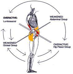Great diagram explaining LBP / pelvic tilt