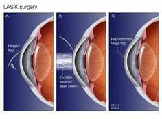 What are the risks of LASIK surgery?