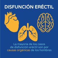 Disfunción eréctil causas gráfico Boston Medical Group España