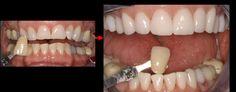 Upper Jaw - Zirconium Crowns Lower Jaw - Bleaching