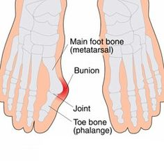 Top 4 Herbal Remedies To Cure Painful Bunions