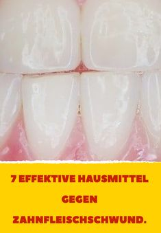 7 effective home remedies for gum recession. Source by Related posts: Home Remedies for Periodontitis (Pyorrhea) Dental Health, Dental Care, Health And Wellness Quotes, Health Fitness, Weight Loss Motivation, Fitness Motivation, Fat Burning Detox Drinks, Clean House, Home Remedies