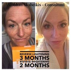 Flawless, glowing skin ✅ Incredibly fabulous lashes ✅ The proof is in the picture. Every. Single. Time. So get in on this regimen/Lash Boost bundle (30% off) while it's still here! Message me with your questions! ❤️