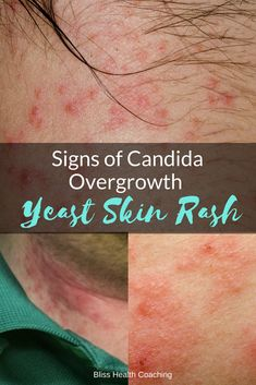 Holistic Health Remedies Are you struggling with a yeast rash? Candida overgrowth can cause a painful itchy rash that is hard to get rid of. Learn home remedies you can use to eliminate candida rashes. Body Rash, Rash On Face, Yeast Infection Home Remedy, Yeast Infection Treatment, Yeast Overgrowth, Candida Overgrowth, Rashes Remedies, Home Remedies, Health Remedies