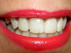 Nova droga estimularia regeneração extra dos dentes  (Foto: Diver Daisy / stock.xchng)