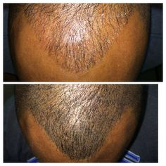 This young man suffers from thinning hair. Cosmetic Hair Replication gave him the illusion of having much more hair on the top of his head. It also gives him a much more youthful hairline!