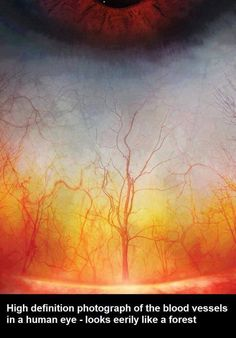 High definition photograph of the blood vessels in a human eye - looks eerily like a forest