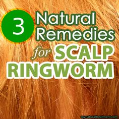 Here you have the most amazing natural remedies for scalp ringworm, also known in medical terms as tinea capitis. #scalpringworm #ringworm