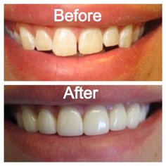 Find out how a Smile Makeover can be life-changing. Dentistry Education, Smile Makeover, Cosmetic Dentistry, Happy Smile, Dental Care, Life Changing, Yolo, Kansas City, Healthy