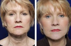 Facial Exercise Secrets: Do Facial Training Regimens Work Efficiently For Face And Throat Firming?