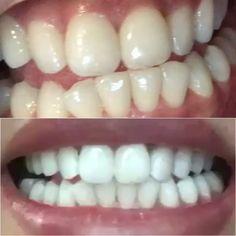 Teeth, Vegetables, Ethnic Recipes, Hot, Natural, White Teeth, White Smile, Clean Teeth, Perfect Teeth