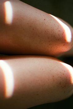 freckles   Tumblr