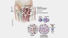 30 Best kanker images in 2019   Acute myeloid leukemia, Bone marrow