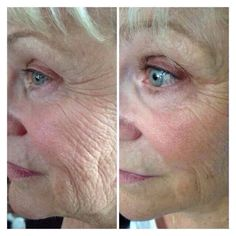 RIP Wrinkles is right!! NeriumAD reduces fine lines, deep lines, skin discoloration, improves tone and texture. And best of all there is a 30 day money back guarantee! Contact me for questions & info: Www.youngnskin.nerium.com Mrsschraut@gmail.com