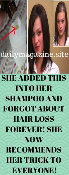 SHE ADDED THIS INTO HER SHAMPOO AND FORGOT ABOUT HAIR LOSS FOREVER SHE NOW RECOMMENDS HER TRICK TO EVERYONE-Essential oils have become pretty common nowadays, with people fully realizing their true potential in recent years. They are used in different ways and for different purposes – for example, many people use them to make powerful homemade shampoos that can treat anything from dandruff to hair loss. Hair loss is a common problem for …