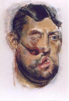 Henry Tonks watercolour documenting facial injuries of the First World War. Flanders Field, Bizarre Art, Pastel Drawing, Art Studies, Military History, Medium Art, First World, Trauma, Bobs