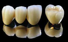 Bọc mão răng sứ giá bao nhiêu, chất lượng liệu có tương xứng với số tiền bỏ ra hay không? Hãy cùng tìm hiểu qua những thông tin trong bài viết sau đây để rõ