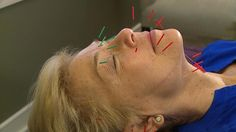 Facial Rejuvenation Acupuncture: A Natural Way to Get Rid of Wrinkles