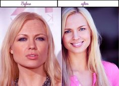 After before Plastic surgery photos of Irina Voronina she looks awesome these days - Being an actress takes a lot of toll in someone's life—everyone in Hollywood knows that. They don't get to have privacy' the smelliest of the smelly secrets they had in the past; spreads like a virus and the worst part' you have to answer to anything they throw at you or else you're a... #IrinaVoroninaAfterBeforeSurgery, #IrinaVoroninaAfterPlasticSurgery, #IrinaVoroninaBef