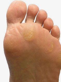 Tratamiento spa para los callos y durezas de los pies