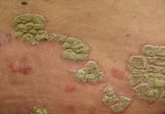 Psoriasis Free - Psoriasis, Obesity, and Heart Disease - Professors Predicted I Would Die With Psoriasis. But Contrarily to their Prediction, I Cured Psoriasis Easily, Permanently & In Just 3 Days. What Is Psoriasis, Psoriasis Symptoms, Psoriasis On Face, Psoriasis Cream, Psoriasis Diet, Plaque Psoriasis, Ayurveda, Doterra, Apple Cider