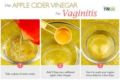 Great homemade remedies, Apple slider vinegar for vaginitis. If you are having vaginitis problem and Apple Cider Vinegar Cellulite, Apple Cider Vinegar Remedies, Apple Cider Vinegar For Hair, Apple Cider Vinegar Benefits, Bv Home Remedies, Skin Tags Home Remedies, Skin Care Remedies, Natural Remedies, Health Remedies