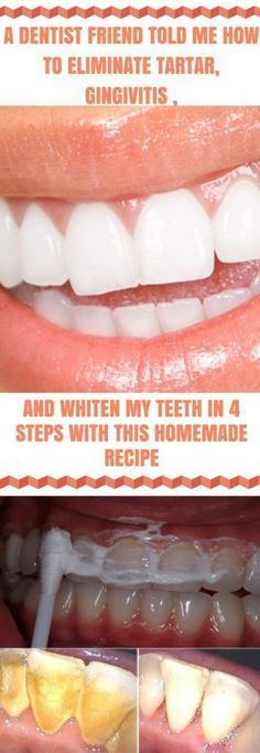 Secret Health Remedies A Dentist Friend Told Me How To Eliminate Tartar Gingivitis and Whiten My Teeth In 4 Steps With This Homemade Recipe - Archive : Fitness Teeth Health, Healthy Teeth, Oral Health, Dental Health, Healthy Life, Healthy Beauty, Dental Care, Healthy Living, Gum Health