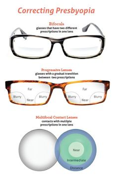 Options for correcting presbyopia.