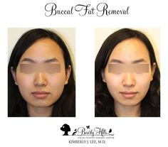 Buccal fat removal cost korea