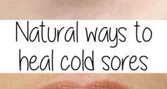 Natural ways to heal cold sores