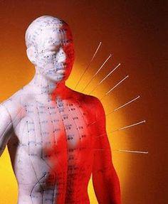 Agopuntura: una disciplina indipendente ed autosufficiente, ma sicuramente complementare all'omeopatia