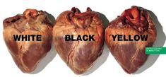 Human hearts (United Colors of Benetton ad)