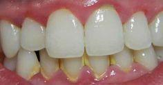 Sarro-y-Placa-Dental