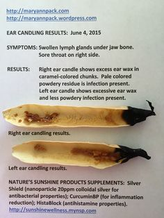 If you are not familiar with ear candling, rest assured many people have never heard of it either. With the advent of the awareness of the benefits of herbal supplements, food being our medicine a…