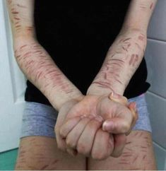 These are scars from self harm as if you can't tell, self harm isn't a joke. It's serious. Before you pick up a blade, remember it's addicting. no one thinks they'll get addicted. You'll start to lie to everyone around you, you'll never be able to dress the way you want, Swimming? Forget it. It won't help anything, Put the blade down. Don't glorify Self-Harm. #SelfHarm #Cutting