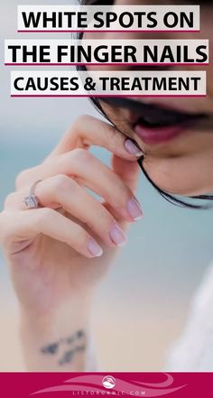 Many things can ruin a first impression. Like unfiled and unkempt nails. And when they have white spots, your confidence goes for a toss. Health And Wellness, Health Care, Health Fitness, Beauty Tips, Beauty Hacks, Online Campaign, Finger Nails, Healthy Beauty, Natural Remedies