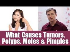 What Causes Tumors, Polyps, Moles & Pimples - YouTube