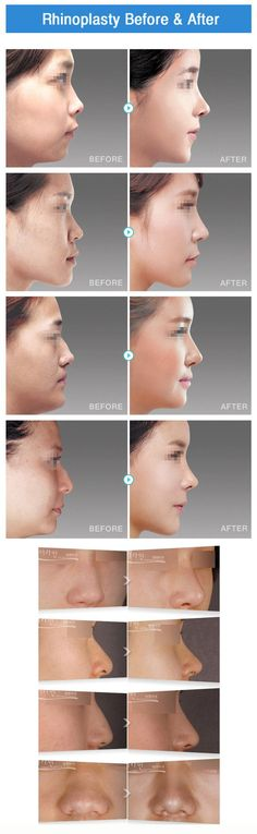 The Line Barbie Nose Rhinoplasty to look natural making doll-like beautiful facial line at any angle. Details: http://9nl.co/BarbieNoseC