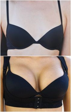 Do natural breast enlargement pills work? Read this and learn the truth about breast enhancement pills so you don't waste your on the wrong product. Home Remedies For Acne, Skin Care Remedies, Natural Home Remedies, Health Remedies, Acne Remedies, Herbal Remedies, Enlargement Pills, Sagging Skin, Bigger Breast