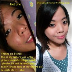 Yet another happy customer served by BN Whitening Shoppe shown in this before and after picture with her message on. She get whiter and smoother skin effectively and on a pocket friendly price. Drop by our official site at http://www.facebook.com/BNwhiteningshoppe?ref=stream