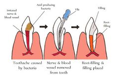 Facts You Should Know About #RootCanalSurgery
