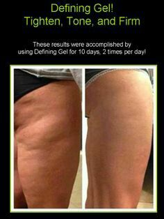 "I am looking for FOUR people that have UNWANTED cellulite, stretch marks or varicose veins? Or that would like to revitalize old tattoos?  Defining Gel aka ""Liquid Gold"" is an amazing all natural gel that you apply to any trouble area up to 2x's/daily!  Defining gel works on sunburns Skin break outs like psoriasis Scars Tattoos Cellulite Varicose veins Stretch marks Tightening/firming the skin And more  Inbox/call me to order yours THIS WEEK! 918.928.WRAP (9727) www.WrapWithTheBest.com…"