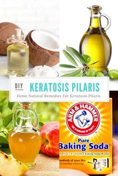 Remedies For Keratosis Pilaris