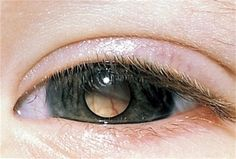 Retinoblastoma: The pale area seen through the pupil of this eye is a retinoblastoma, a rare cancer of the membrane at the back of the eye.