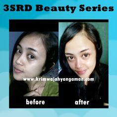 Before and after penggunaan 3SRD Beauty Series