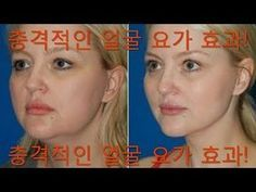 Fitness Diet, Health Fitness, Uterine Prolapse, Madona, Nicotine Withdrawal, Restless Leg Syndrome, Face Yoga, Body Hacks, Facial Massage