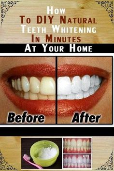 Natural Tooth Whitening Ideas: How to DIY Natural Teeth Whitening in Minutes at Your Home