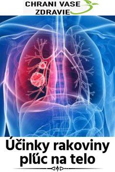 Účinky rakoviny pľúc na telo