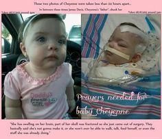 {Shaken Baby Syndrome}